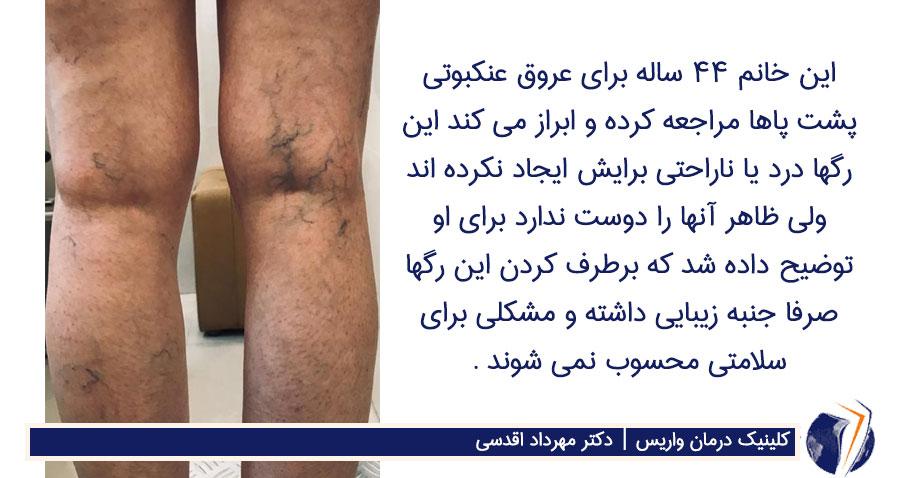 عروق عنکبوتی پشت پاهای خانم 44 ساله
