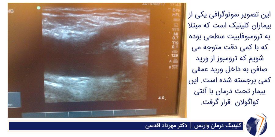 سونوگرافی ترومبوفلبیت سطحی