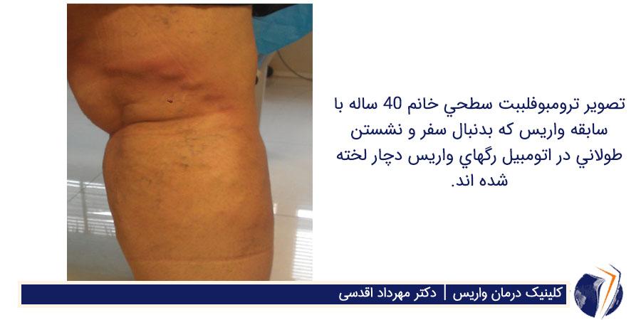 ترومبوفلببت سطحی و رگهای واریس که دچار لخته شده اند