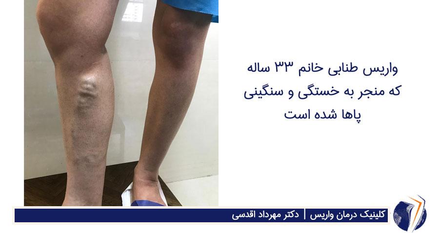 واریس طنابی خانم 33 ساله که منجر به خستگی و سنگینی پاها شده است