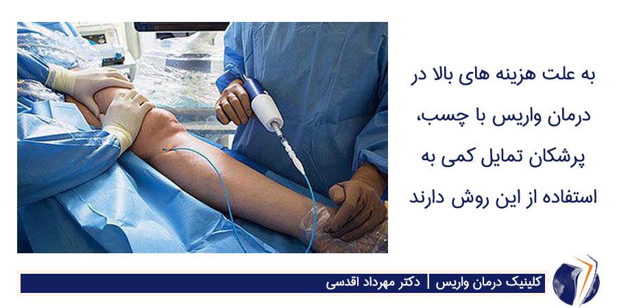 درمان واریس با چسب