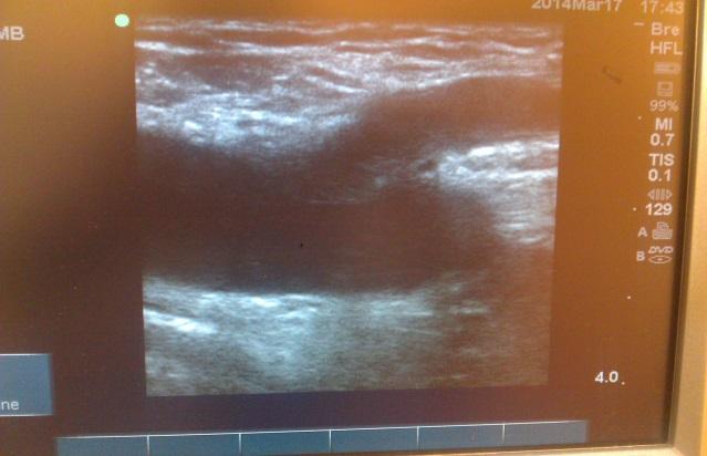 تصویر سونوگرافی یکی از بیماران کلینیک مبتلا به ترومبوفلبیت سطحی