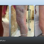 عکس قبل و بعد درمان واریس