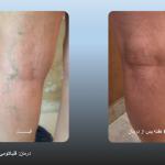 قبل و بعد از اسکلروتراپی