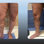 درمان واریس قبل و بعد