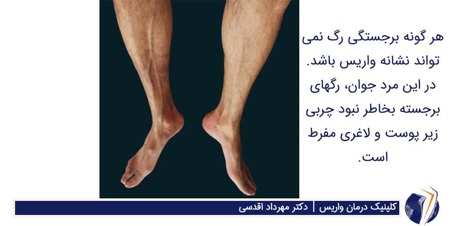 برجستگی رگ و لاغری پا