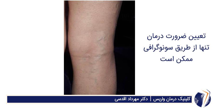 تعیین ضرورت درمان تنها از طریق سونوگرافی ممکن است