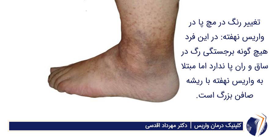 تغییر رنگ در مچ پا