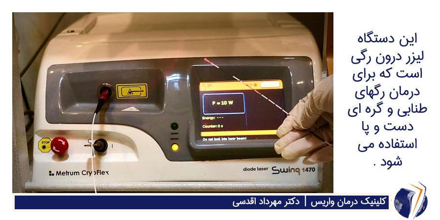 دستگاه لیزر درون رگی برای درمان رگهای طنابی و گره ای دست و پا