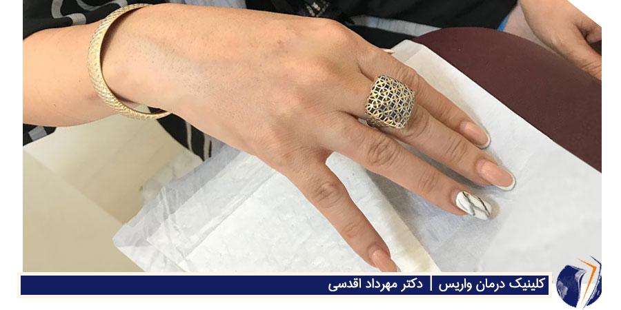 دست درمان شده از واریس که جوانتر نشان داده می شود