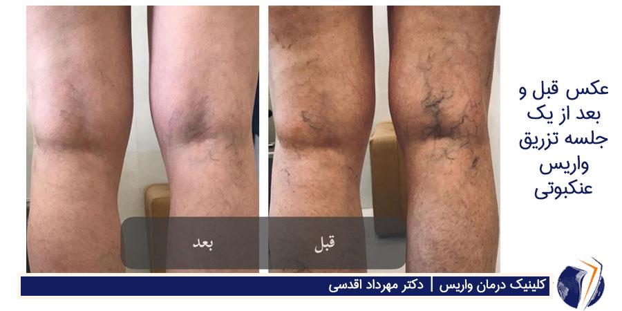 عکس قبل و بعد از یک جلسه تزریق واریس عنکبوتی