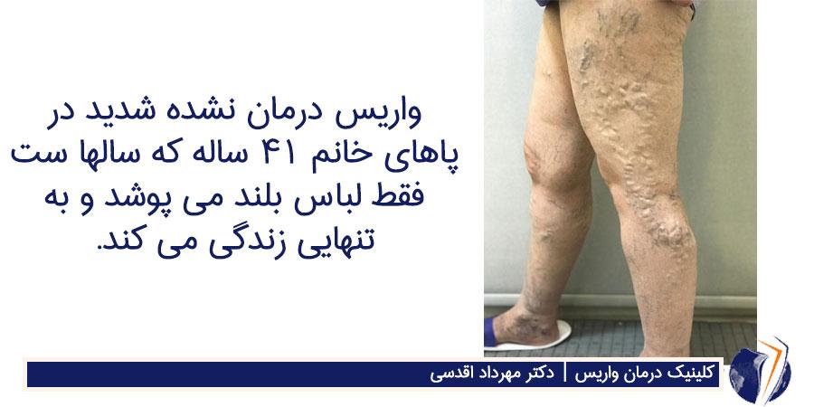 واریس درمان نشده شدید در پاهای خانم 41 ساله