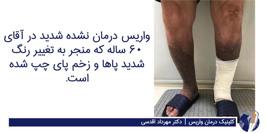واریس درمان نشده شدید در آقای 60 ساله که منجر به تغییر رنگ شدید پاها و زخم پای چپ شده است.
