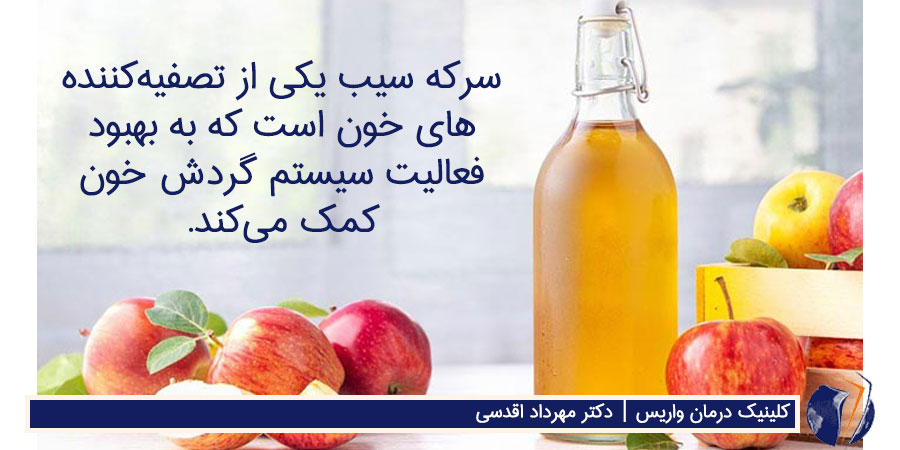 سرکه سیب به درمان واریس کمک می کند