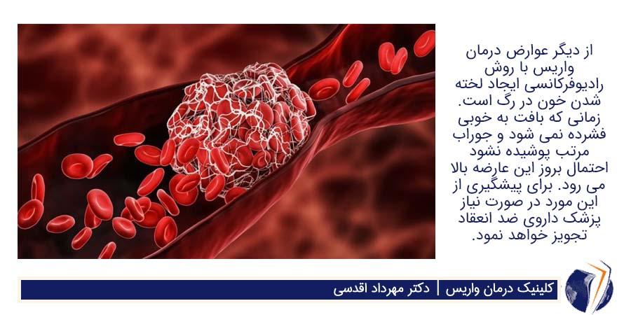 لخته شدن خون در رگ