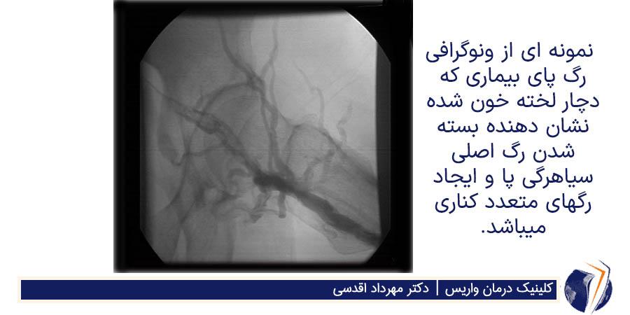 ونوگرافی رگ پای بیماری که دچار لخته خون شده