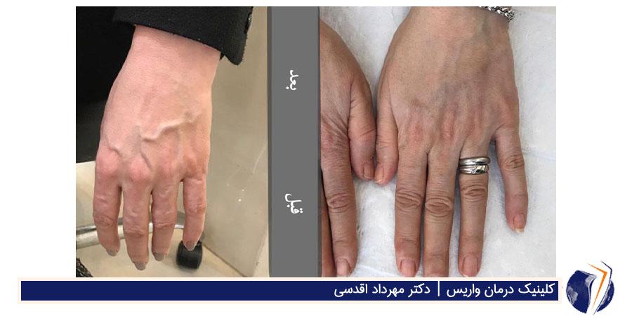 قبل و بعد از درمان واریس دست