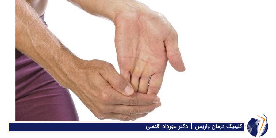 کشش انگشتان برای درمان واریس
