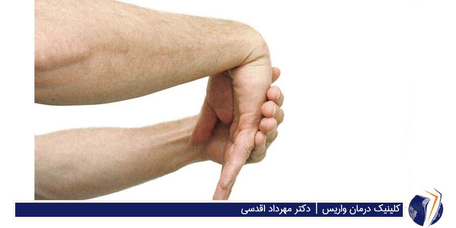 کشش مچ برای درمان وریس دست