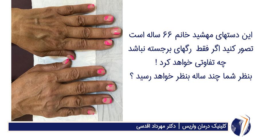 دست های خانم 66 ساله با رگ های واریسی