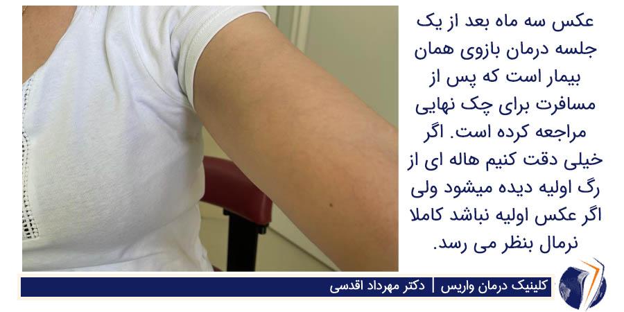 عکس سه ماه بعد درمان واریس بازو
