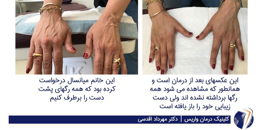 نتیجه ی اسکلروتراپی دست