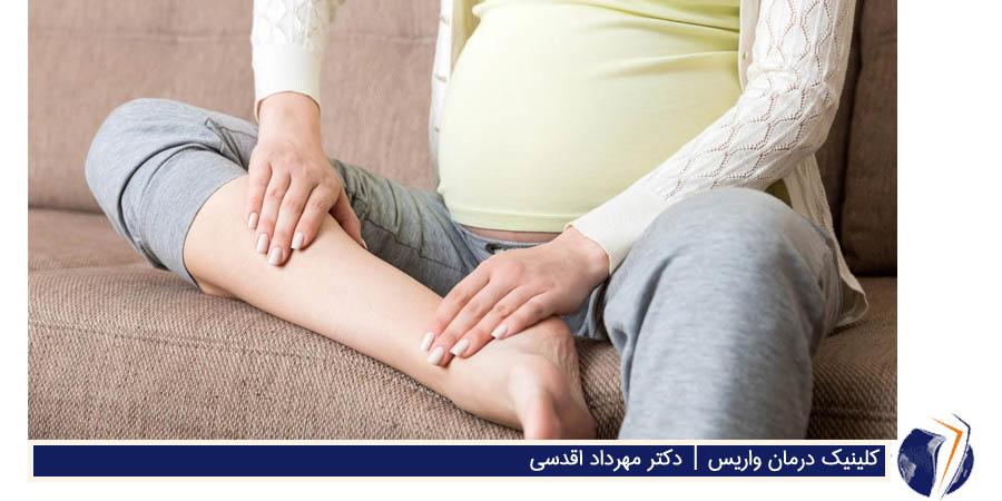 خطرات واریس در بارداری