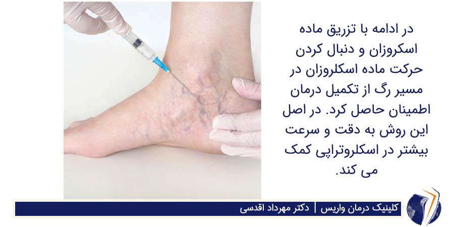 تزریق ماده اسکروزان