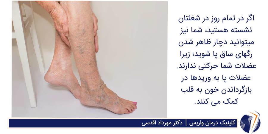 ظاهر شدن رگهای ساق پا