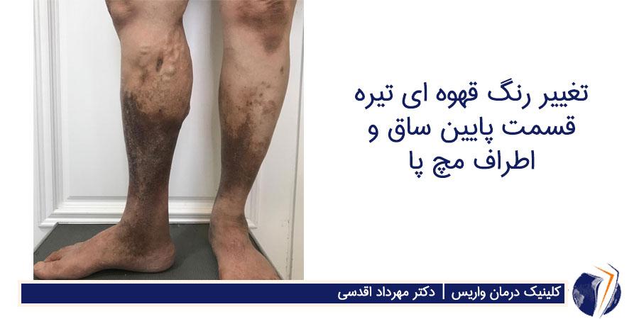 تغییر رنگ قهوه ای تیره قسمت پایین ساق و اطراف مچ پا