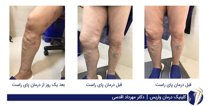 قبل وبعد درمان واریس در بیمار دیابتی