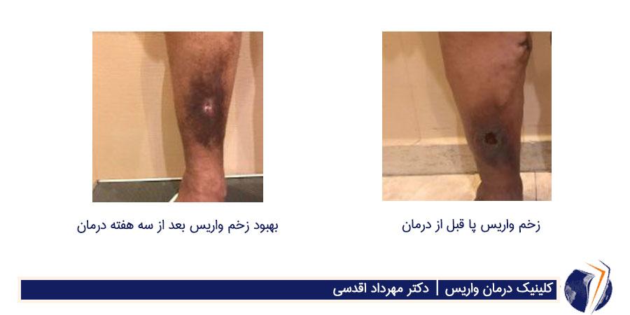 عکس قبل و بعد از درمان زخم واریس