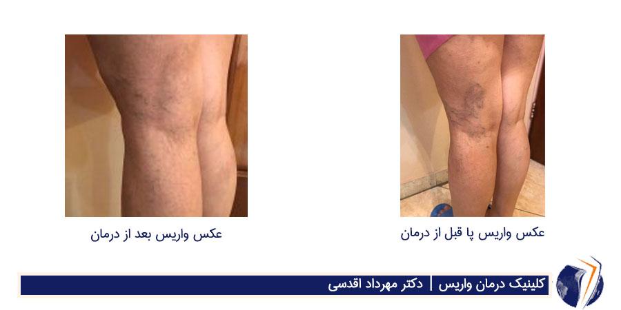 قبل و بعد از درمان واریس پا در کارمندان