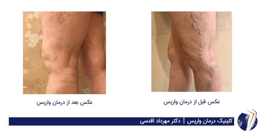 عکس قبل و بعد از درمان واریس