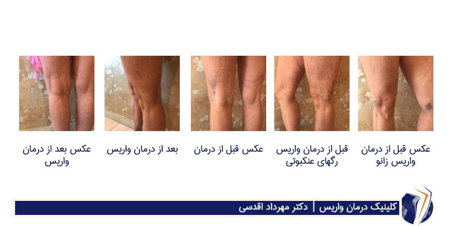 عکسهای قبل و بعد از درمان رگهای عنکبوتی