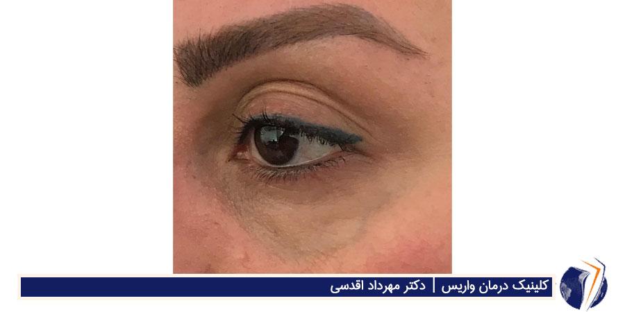 رگهای رتیکولر چشم
