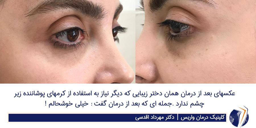 درمان واریس زیر چشم