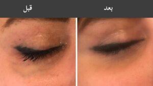 درمان رگ سبز زیر چشم
