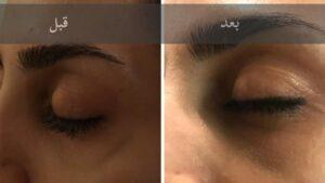 درمان رگ های زیر چشم با روش میکروفلبکتومی
