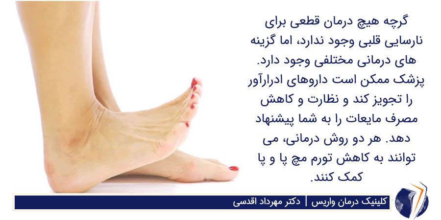 کاهش تورم مچ پا